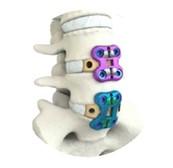 Nova técnica de cirurgia minimamente invasiva da coluna lombar é realizada pelo abdômen e acelera recuperação