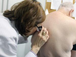 Mês de Combate ao Melanoma reforça importância do diagnóstico precoce